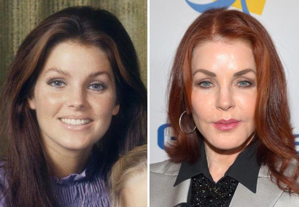 Priscilla Presley Plastic Surgery Before & After