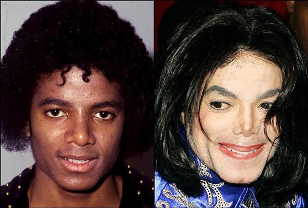 Michael Jackson Plastic Surgery Before & After