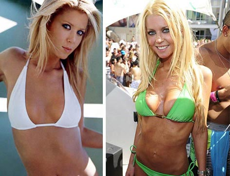 Tara Reid Awful Plastic Surgery
