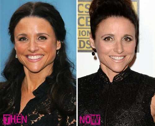 Julia Louis-Dreyfus Plastic Surgery Before & After