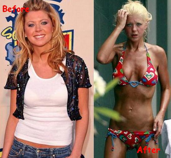 Tara Reid Plastic Surgery Gone Bad