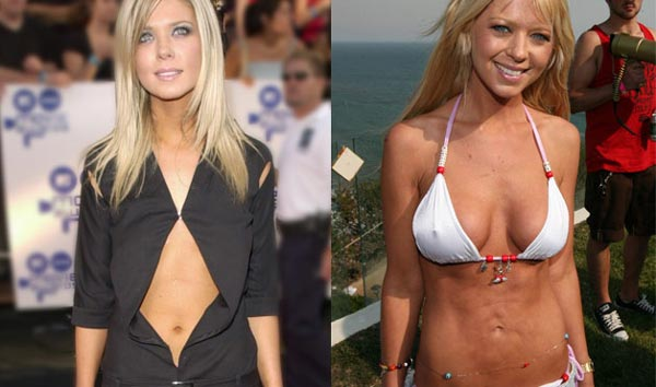 Tara Reid Plastic Surgery Gone Wrong