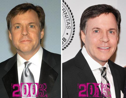 Bob Costas Plastic Surgery Before & After