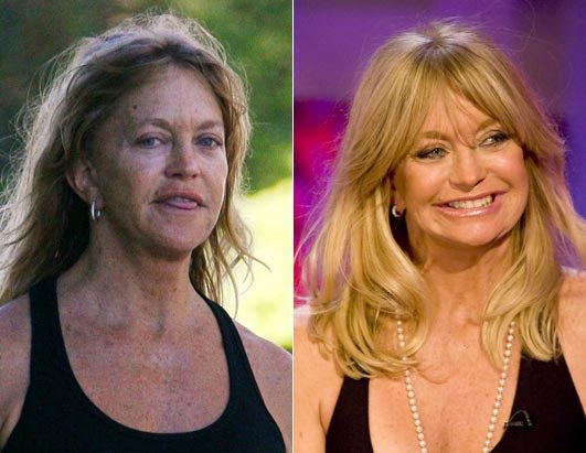 Goldie Hawn Plastic Surgery Before & After