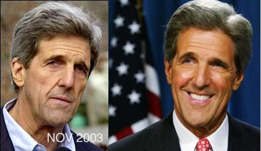 John Kerry Plastic Surgery Before & After