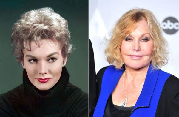 Kim Novak Plastic Surgery Before & After