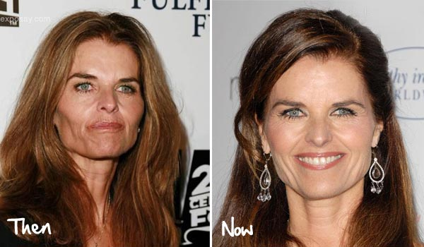 Maria Shriver Plastic Surgery Before & After