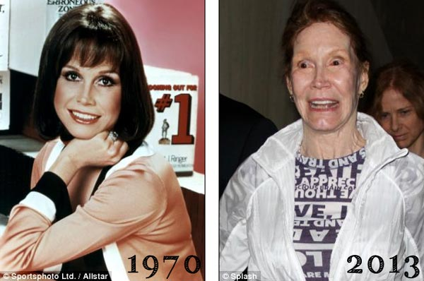 Mary Tyler Moore Plastic Surgery Before & After
