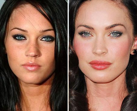 Megan Fox Nose Job