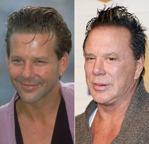 Mickey Rourke Reconstructive Plastic Surgery