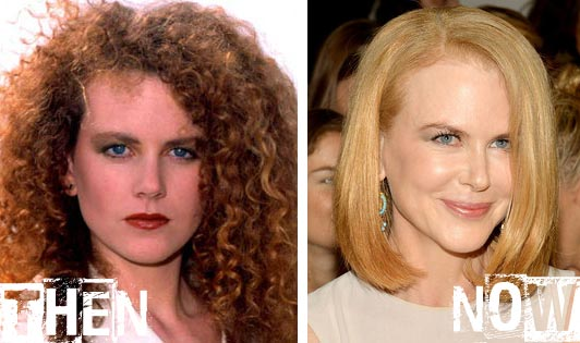 Nicole Kidman Plastic Surgery Before & After