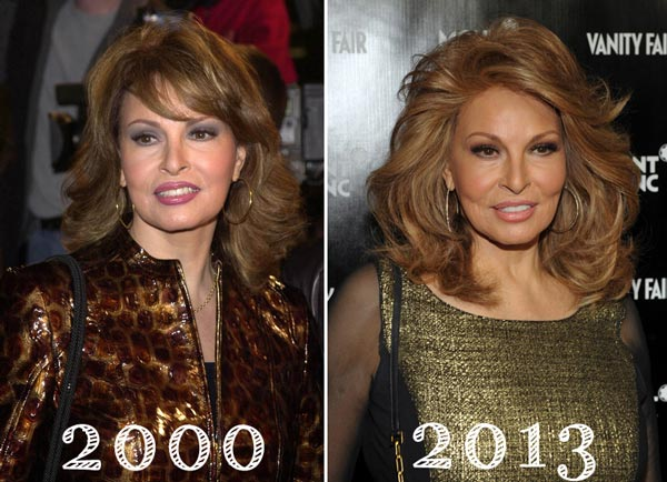 Raquel Welch Plastic Surgery Before & After