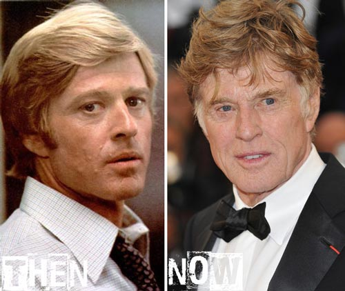 Robert Redford Plastic Surgery Before & After