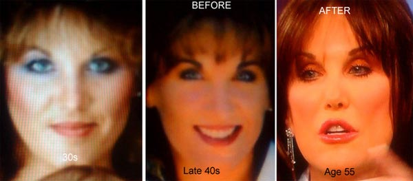Robin McGraw Plastic Surgery Before & After