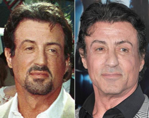 Sylvester Stallone Plastic Surgery Before & After