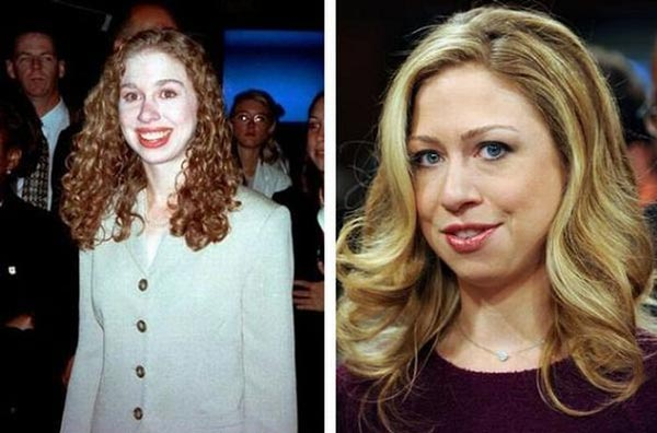 Chelsea Clinton Nose Job