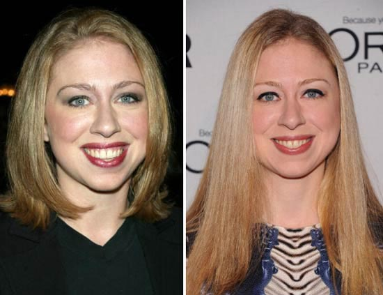 Chelsea Clinton Plastic Surgery Pictures