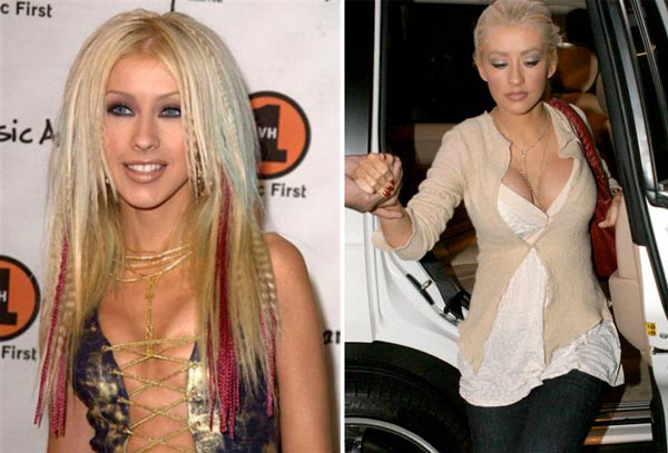 Christina Aguilera Breast Implants