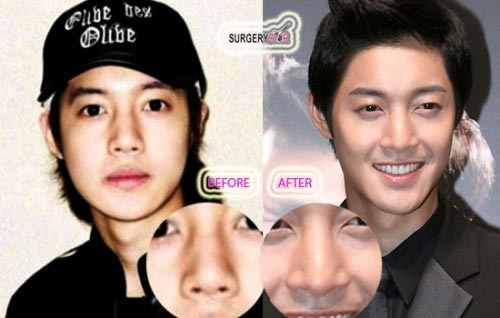 Kim Hyun Joong Plastic Surgery Before & After