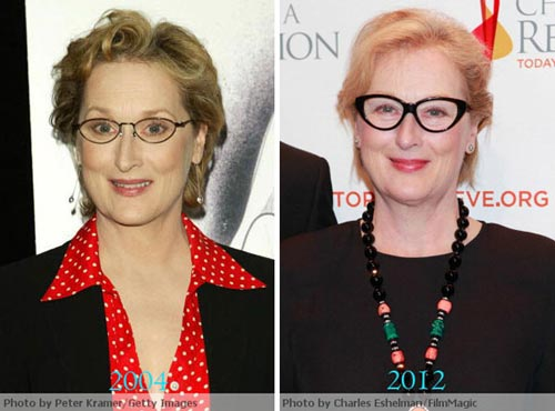 Meryl Streep Plastic Surgery Before & After