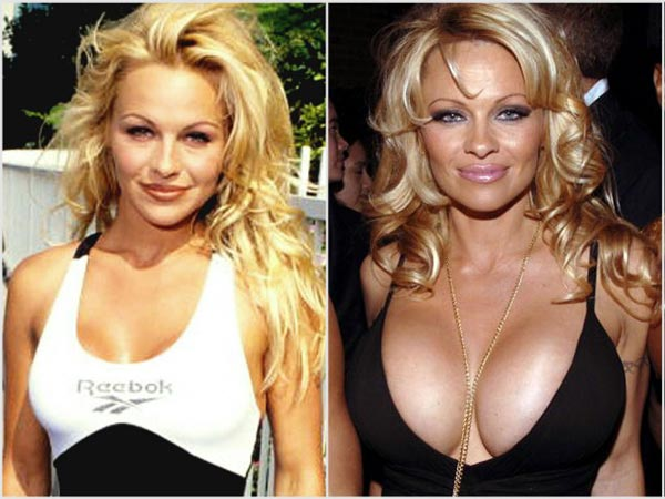 Pamela Anderson Breast Implants