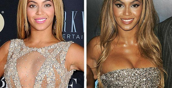 Beyonce Plastic Surgery Pictures