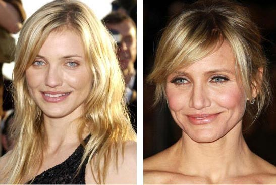 Cameron Diaz Plastic Surgery Before & After