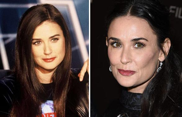 Demi Moore Plastic Surgery Before & After