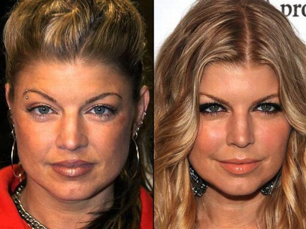 Fergie Plastic Surgery Before & After