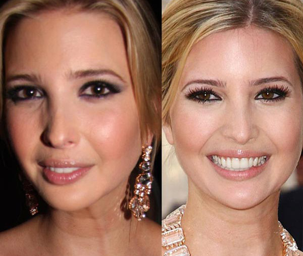 Ivanka Trump Plastic Surgery Before & After