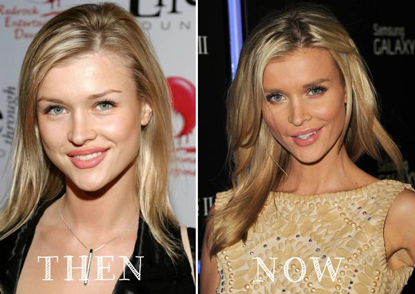 Joanna Krupa Plastic Surgery Before & After
