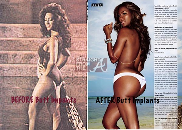 Kenya Moore Butt Implants