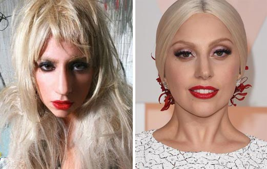 Lady Gaga Plastic Surgery Before & After