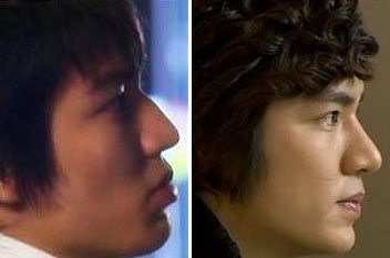Lee Min Ho Plastic Surgery Before & After