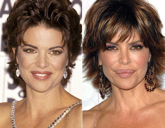Lisa Rinna Lip Injection