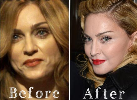 Madonna Plastic Surgery Before & After