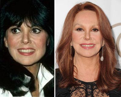Marlo Thomas Nose Job