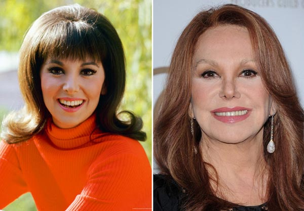 Marlo Thomas Plastic Surgery Before & After