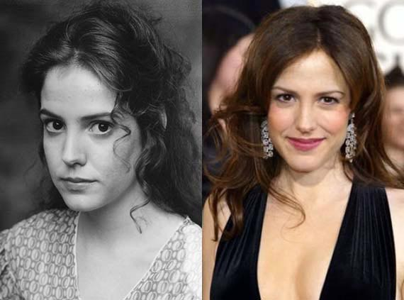 Mary Louise Parker Plastic Surgery Before & After
