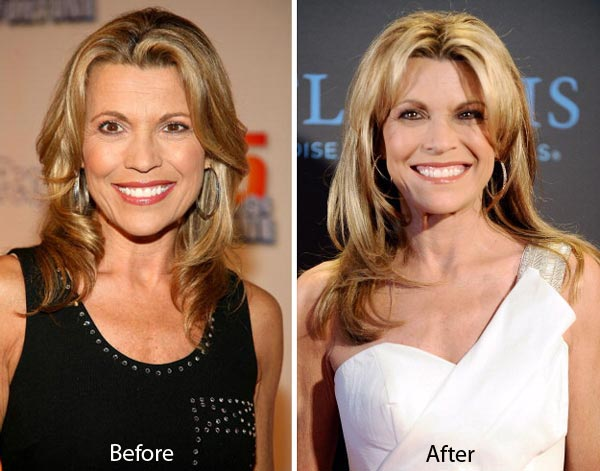 Vanna White Plastic Surgery Before & After