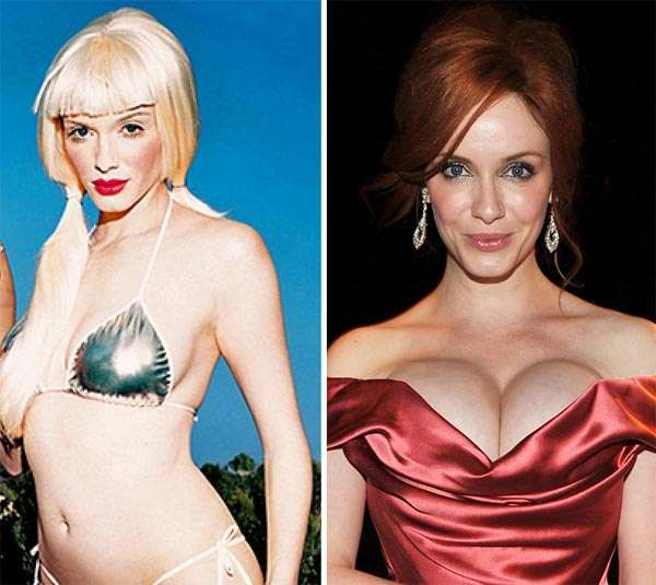 Christina Hendricks Plastic Surgery Before & After