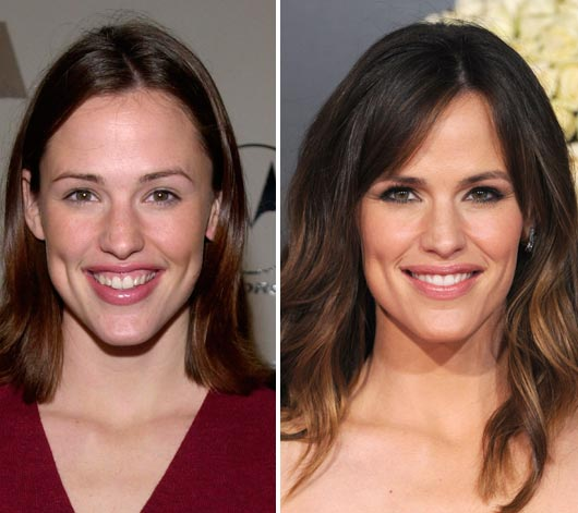 Jennifer Garner Plastic Surgery
