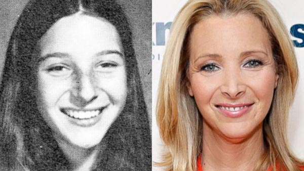 Lisa Kudrow Plastic Surgery