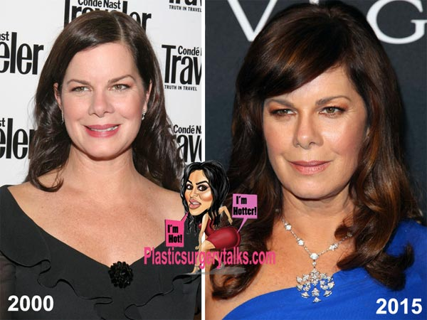 Marcia Gay Harden Plastic Surgery