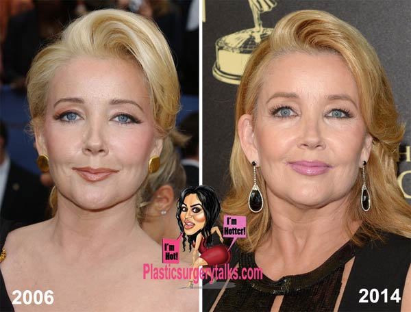 Melody Thomas Scott Plastic Surgery Before & After