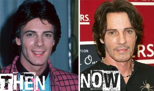 Rick Springfield Plastic Surgery Before & After