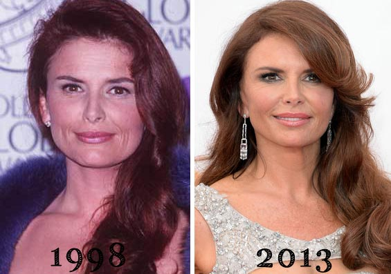 Roma Downey Plastic Surgery Before & After