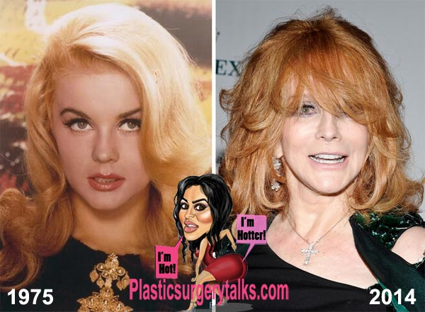Ann Margret Plastic Surgery