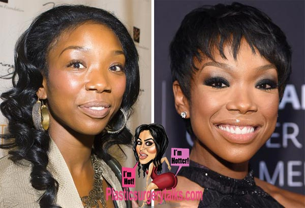 Brandy Norwood Plastic Surgery