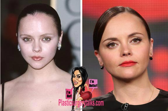 Christina Ricci Nose Job